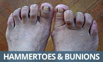 Hammertoes & Bunions